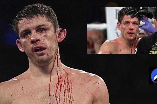 Rinqdə faciə: boksçunun qulağı cırıldı – VİDEO